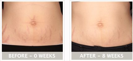 Bio Oil Before and After Stretch marks
